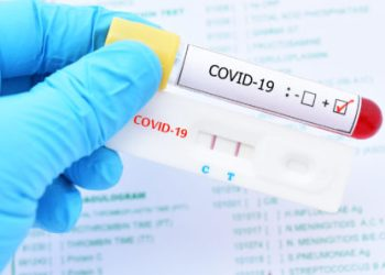 Positive test result by using rapid test device for COVID-19 virus, novel coronavirus 2019 found in Wuhan, China