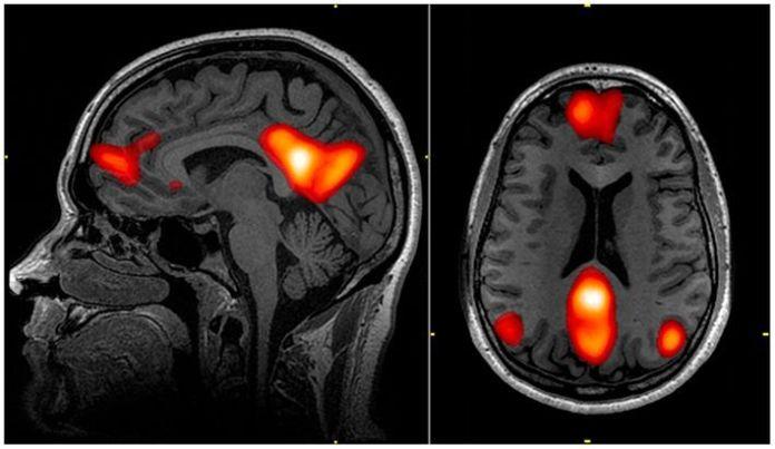 Accidente cerebrovascular sigue siendo la segunda causa de muerte en el mundo
