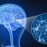 ¿Qué es la Esclerosis múltiple?