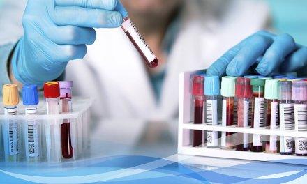 Vacuna de la Universidad de Oxford valdría 2,5 euros la unidad