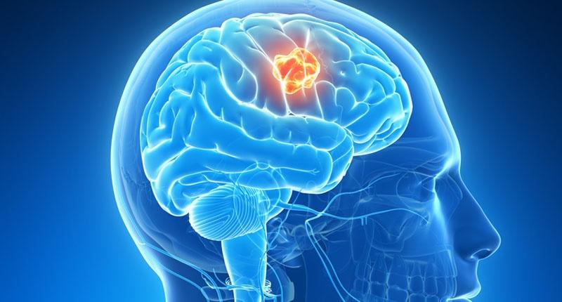 8 de junio, Día Internacional de los Tumores Cerebrales