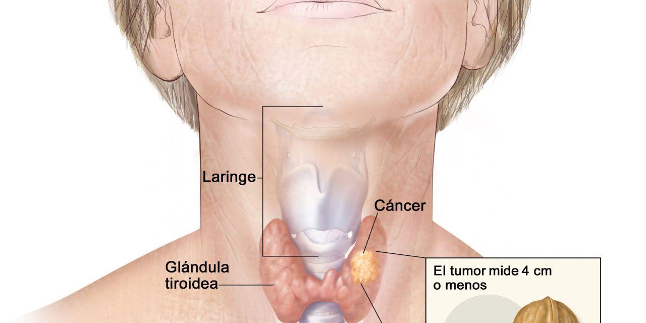 El cáncer de tiroides es el octavo cáncer más frecuente en las mujeres