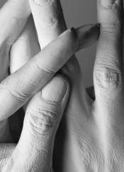 Gipsabformungen von Händen einer Balletttänzerin
