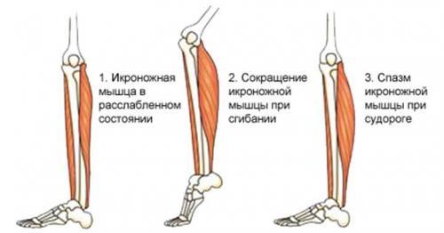 Судороги мышц бедра причины и лечение. Почему сводит ногу ...