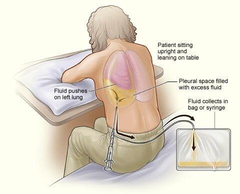 infeccion pulmonad