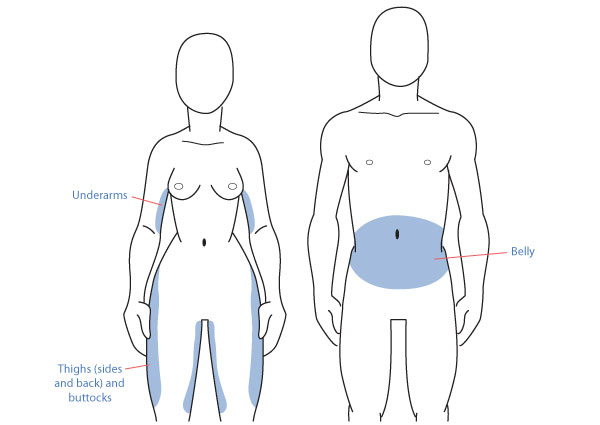 Stubborn Fat: Male vs. Female