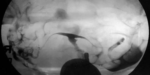 image of t-shaped-uterus