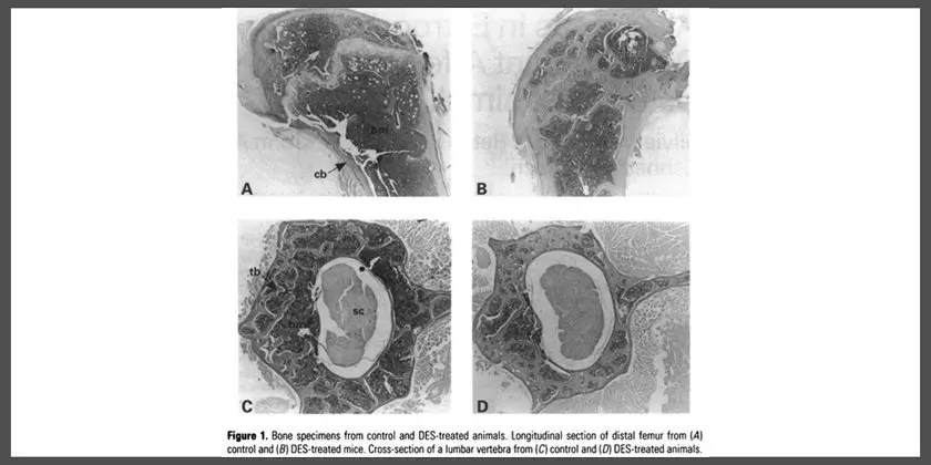 Alterations in estrogen levels during development affects the skeleton: use of an animal model