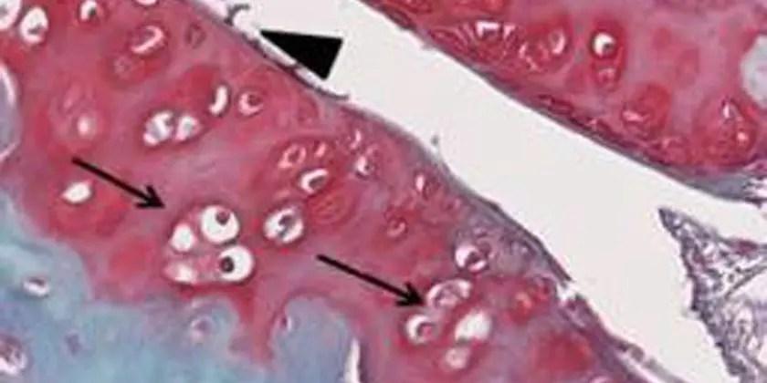 In utero DES exposure effect on lumbar and femoral bone, articular cartilage, intervertebral disc
