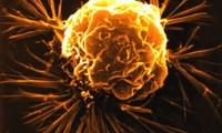 Testicular cancer case in a DES Son