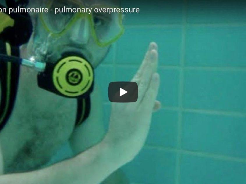 Comprendre la surpression pulmonaire en 60 secondes (et ne plus jamais oublier)?