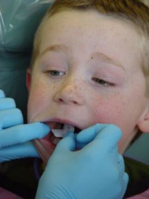 Finding dental care for kids with special needs can be difficult at best and impossible at worst as this post shows.
