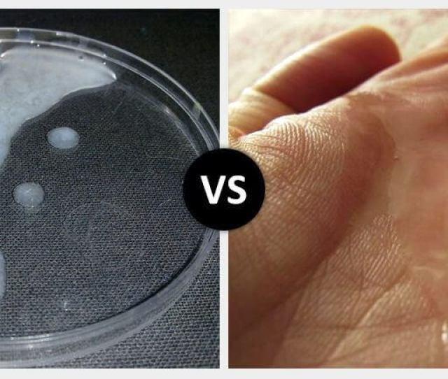 White Sperm Vs Clear Sperm