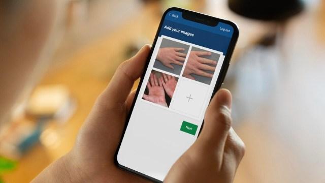 digital dermatology