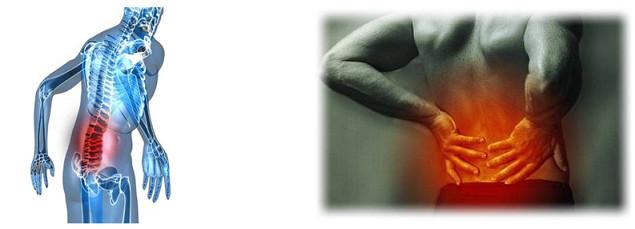 Afecções ocupacionais de origem biomecânica-Digitador-Ergonomics