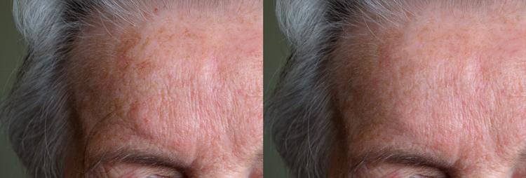 06 spot healing forehead