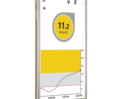Dexcom – Glukose-Monitoring neu auch auf Android-Devices