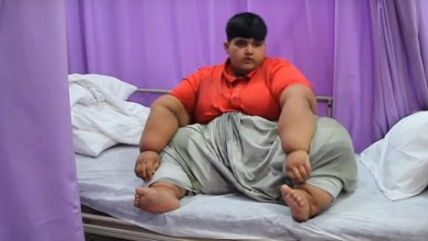 Photo of World's Heaviest Boy Weighs 196 Kg and Needs Life-Saving Operation