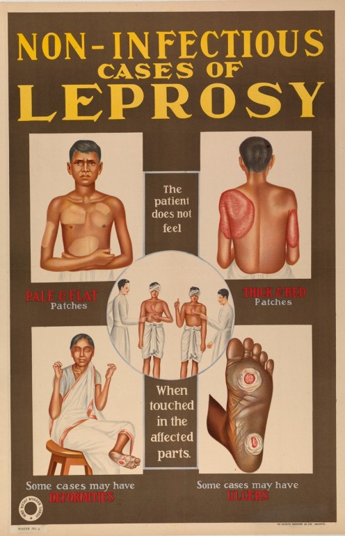 a poster from India depicting drawings of people with non-infections leprosy lesions