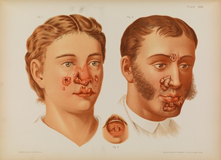 a medical illustration showing two young men with substantial facial lesions