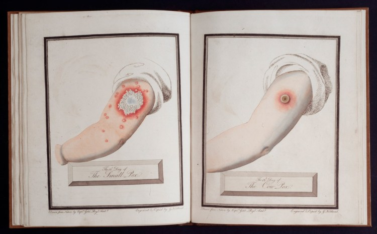 G. Kirkland, 30 Plates of Small Pox and Cow Pox