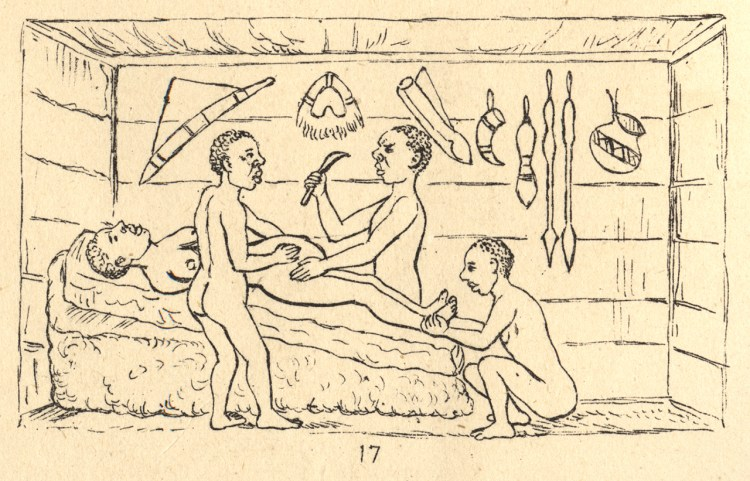 A sketch of three Ugandan healers performing a c-section on a naked woman lying on a bed in a hut, with various pots and tools hanging from the wall.