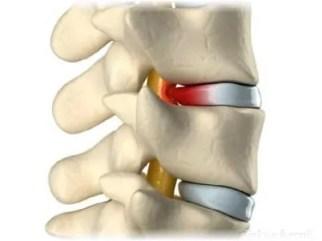 diskus hernija simptomi