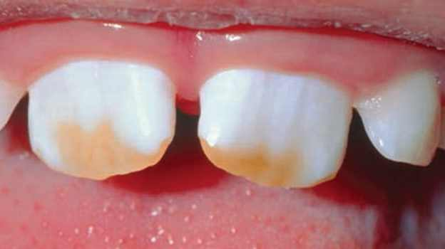 Current Concepts in Caries Risk Assessment course image