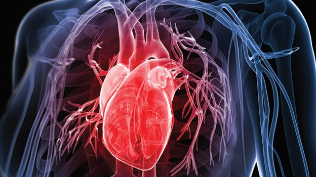 Managing Patients With Critical Cardiac Conditions course image