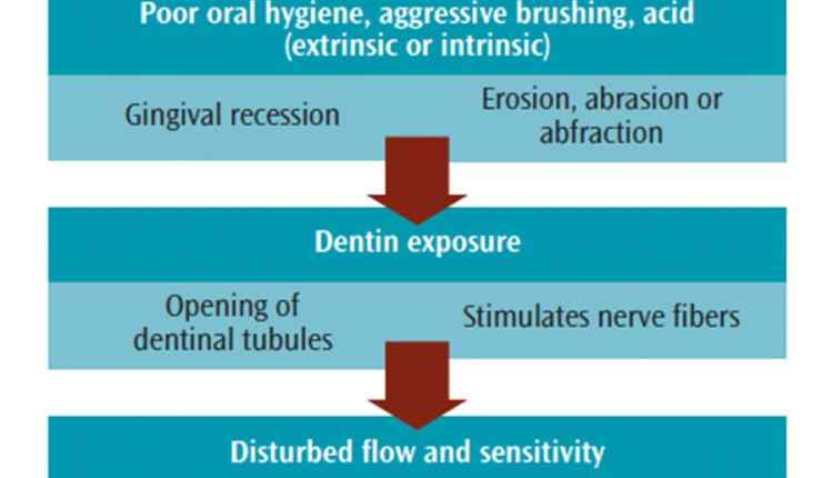 table-2-dentin