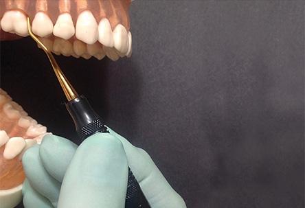 first-molar-teeth-fig-1