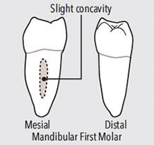 first-molar-teeth-figure-9