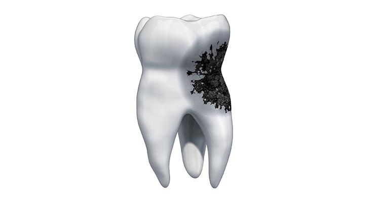 3d render of diseased tooth