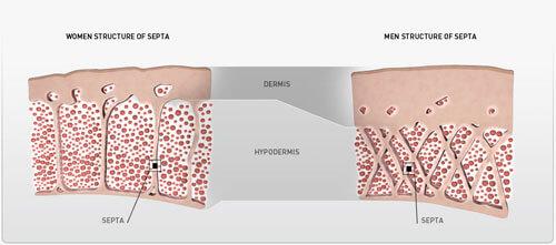 Cellulite (Endermologie-LPG)