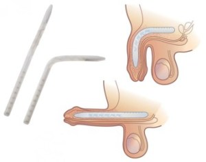 THE GENESIS™ FLEXIBLE ROD PENILE IMPLANT