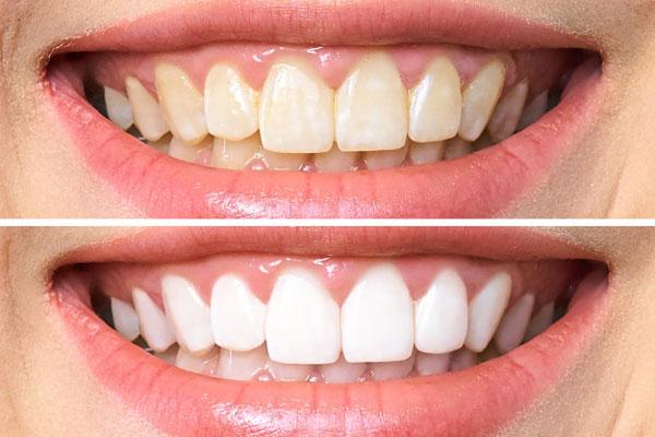 Giá tẩy trắng răng tại BMT