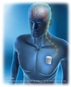 Illustration of a device implanted near the heart and a wire that leads to the brain.