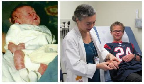 Photo of an infant with mottled skin adjacent to a photo of young man with clear skin being examined by a female doctor.