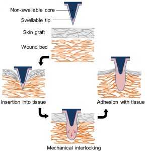 Drawings of the stages of interlocking graph tissue with wounded tissue using this new spiny adhesive