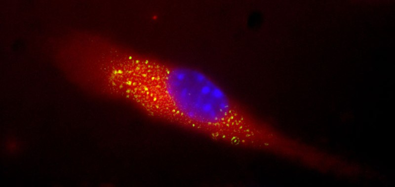 Glowing image of MRSA toxin