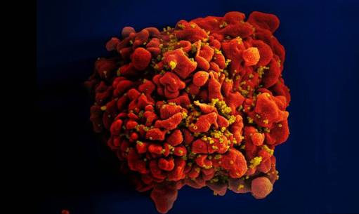 HIV-infected Immune Cell