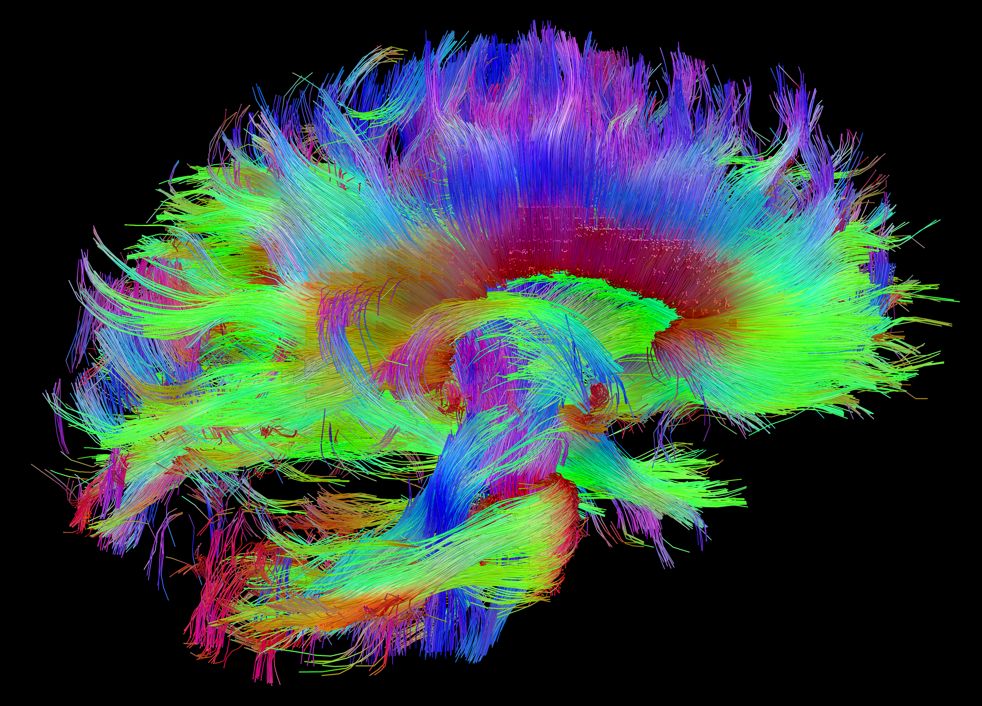 If Genes Dont Turn Off Brains Wiring >> Making The Connections Study Links Brain S Wiring To Human