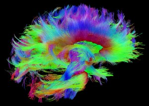 Making the Connections: Study Links Brain's Wiring to Human Traits – NIH Director's Blog