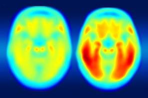 PET imaging of tau protein in the brain
