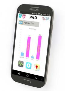 Smartphone Readout of PAD System