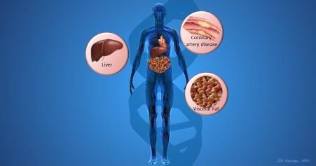 Cardiometabolic risk loci