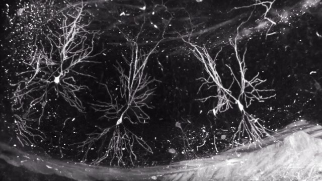 The Amazing Brain: Shining a Spotlight on Individual Neurons