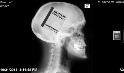 X-rays of my body reveal changes in my mind's focus ...