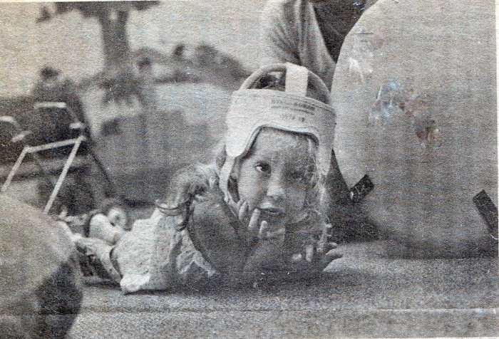 A black and white newspaper clipping of a young little curly-haired blonde, covered by a plastic helmet, lying on the floor on her stomach with her metal walker in the background. She holds her chin up with one of her hands and looks forward. There are physical therapy balls surrounding her.