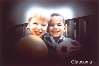 glauccoma diabetic eye disease